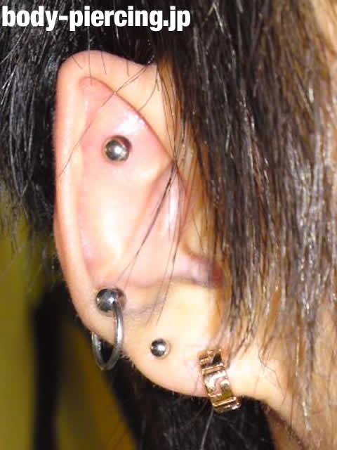 かっしーさんの右耳の耳たぶ・イヤーロブと、軟骨・アウターコンクのボディピアス写真。